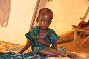 A_malnourished_child_in_an_MSF_treatment_tent_in_Dolo_Ado
